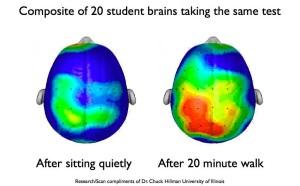 brain-scan-e1433409511556